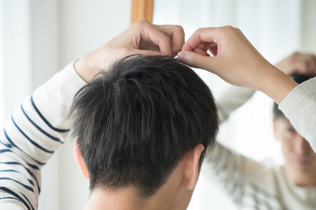 男性型脱毛症(20代男性)