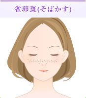 雀卵斑(そばかす)